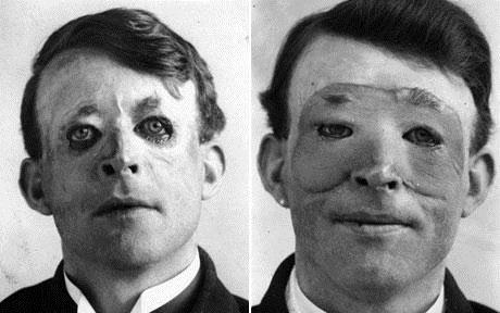 والتر یئو، قبل (سمت چپ) و بعد (سمت راست) از عمل پیوند پوست